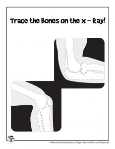 X-Ray Tracing Activity